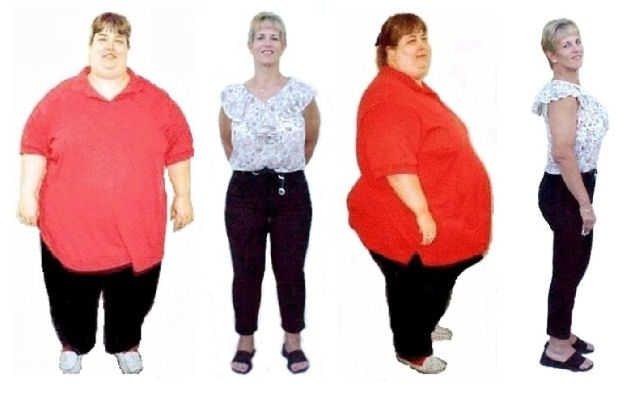 احذروا عمليات جراحة انقاص الوزن: خطرة على العظام