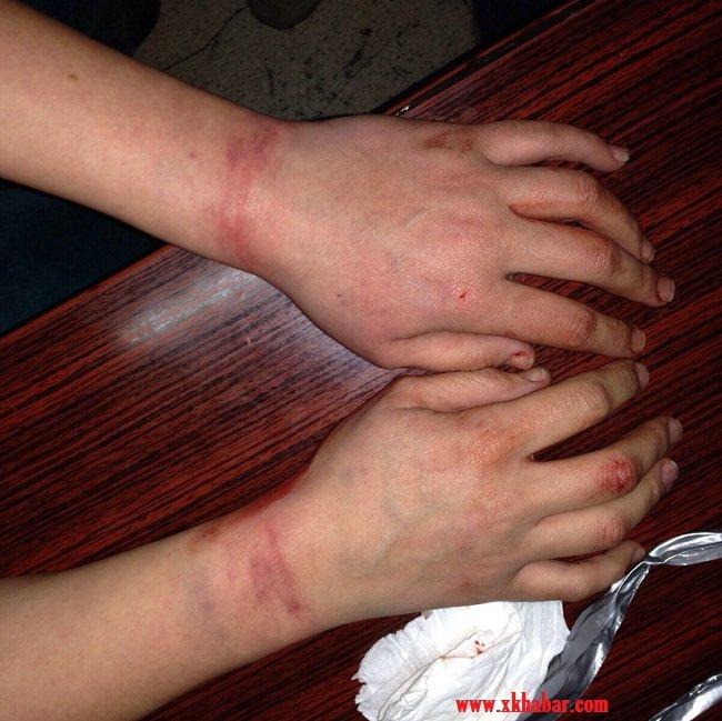 الامن اللبناني يُحبط عملية خطف امرأة مُكبّلة في بيروت