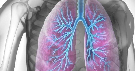 مرض نادر يصيب 8 أشخاص من اصل مليون .. تعرّف عليه