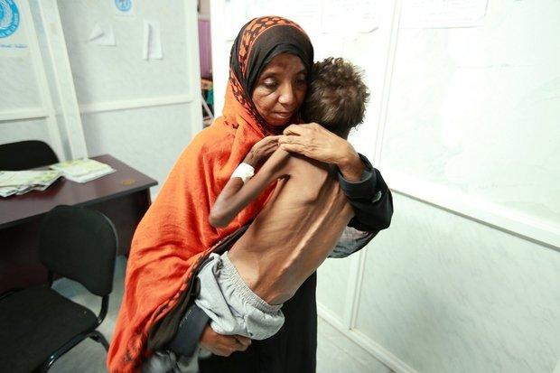 مليون إصابة بالكوليرا في اليمن بحسب الصليب الاحمر